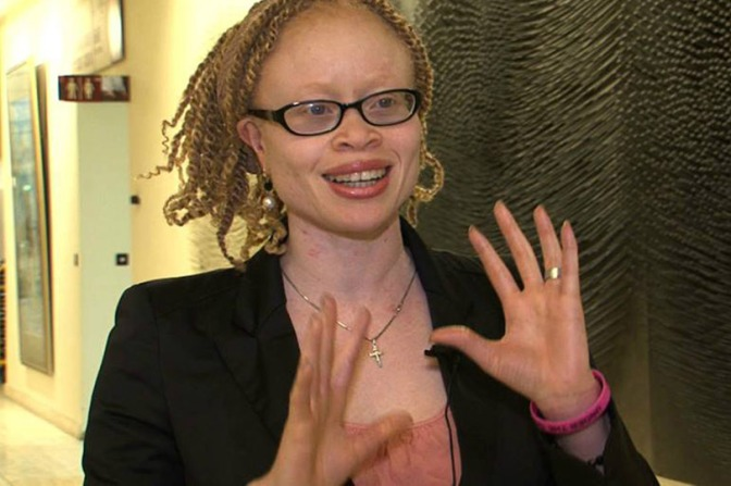 East & Southern Africa Feature | People with Albinism